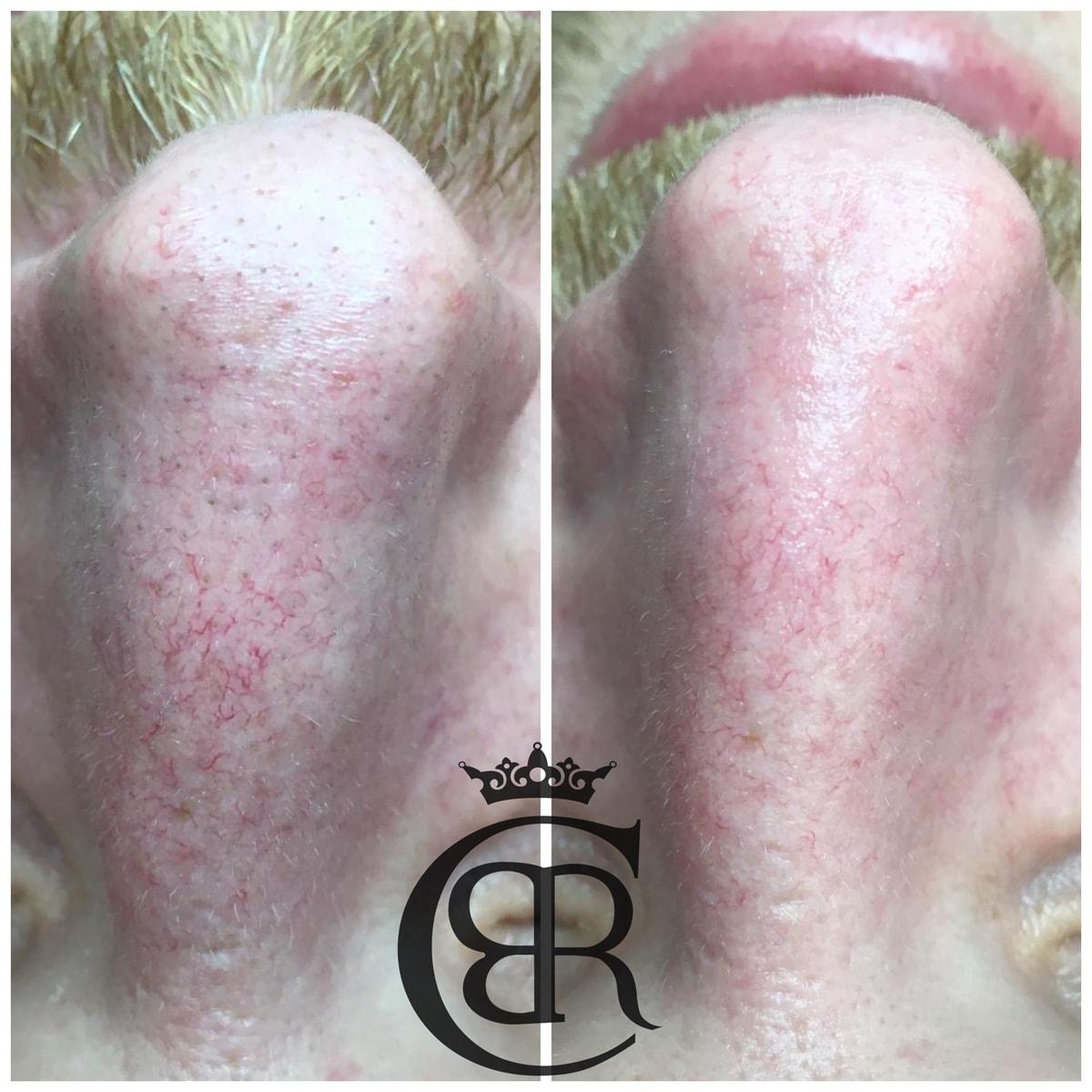 Oczyszczanie wodorowe twarzy - przed i po zabiegu
